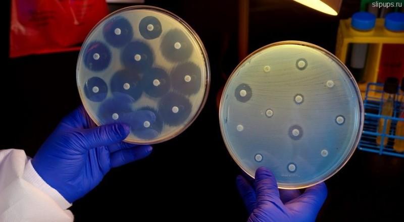 Кризис антибиотикотерапии: почему супербактерии побеждают