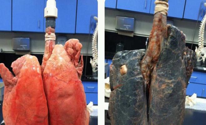 Как бросить курить за 5 секунд здоровье,курение,никотин,Пространство,яд