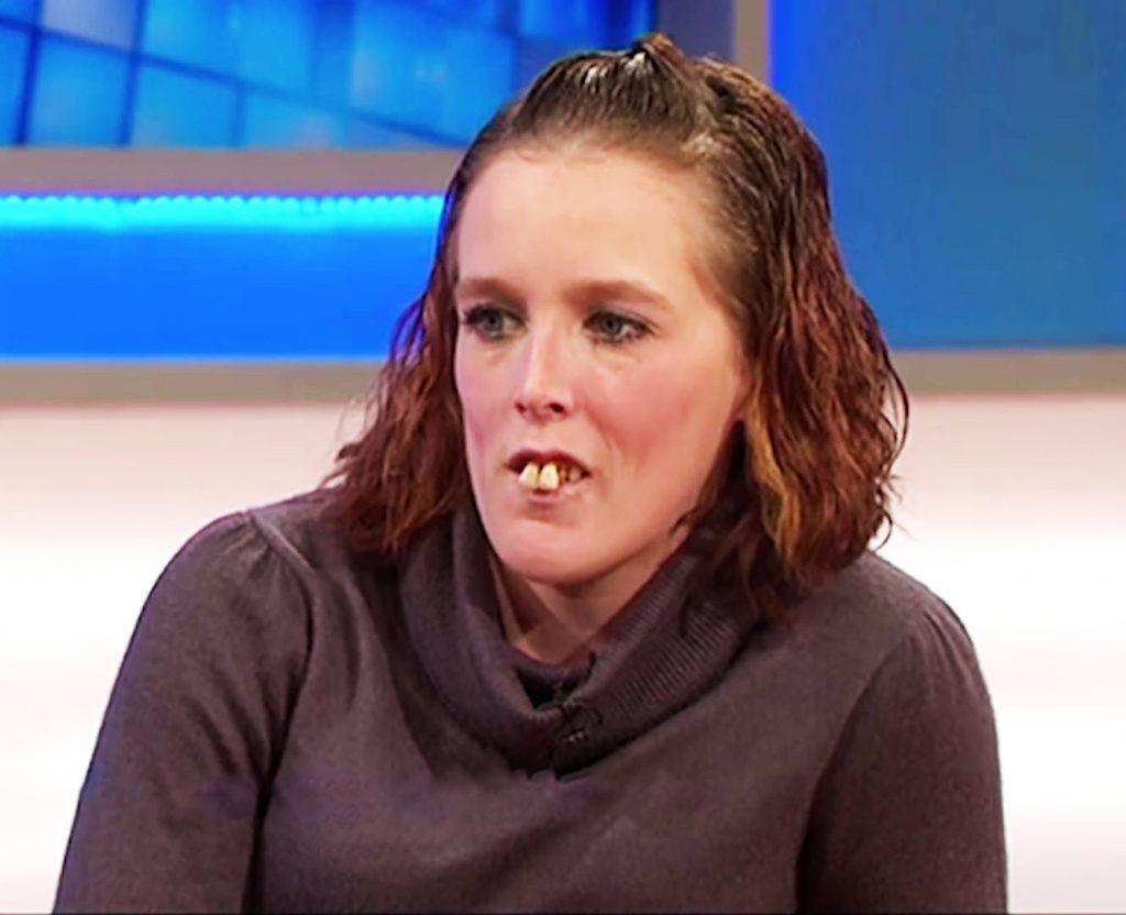 Все насмехались над ней из-за ее зубов, но потом она решилась на операцию. Взгляните, как она преобразилась!