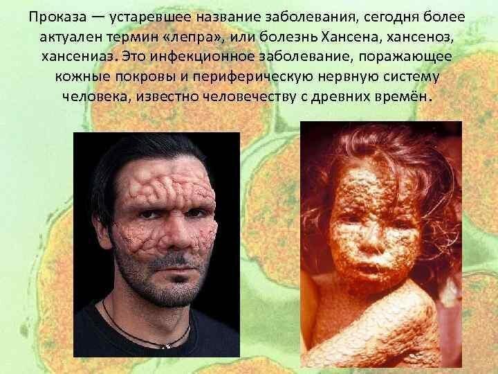 Проказа (лепра). Вакцинация, медицина, смертельные болезни 100 лет назад