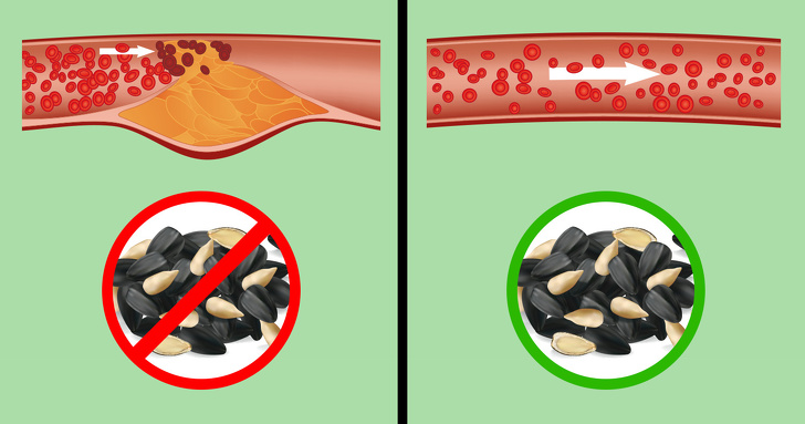 Что происходит с организмом, когда вы часто едите семечки (И правда ли, что они провоцируют аппендицит)