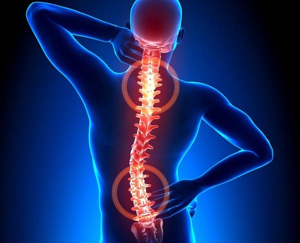 Остеохондроз. Народные средства для лечения остеохондроза