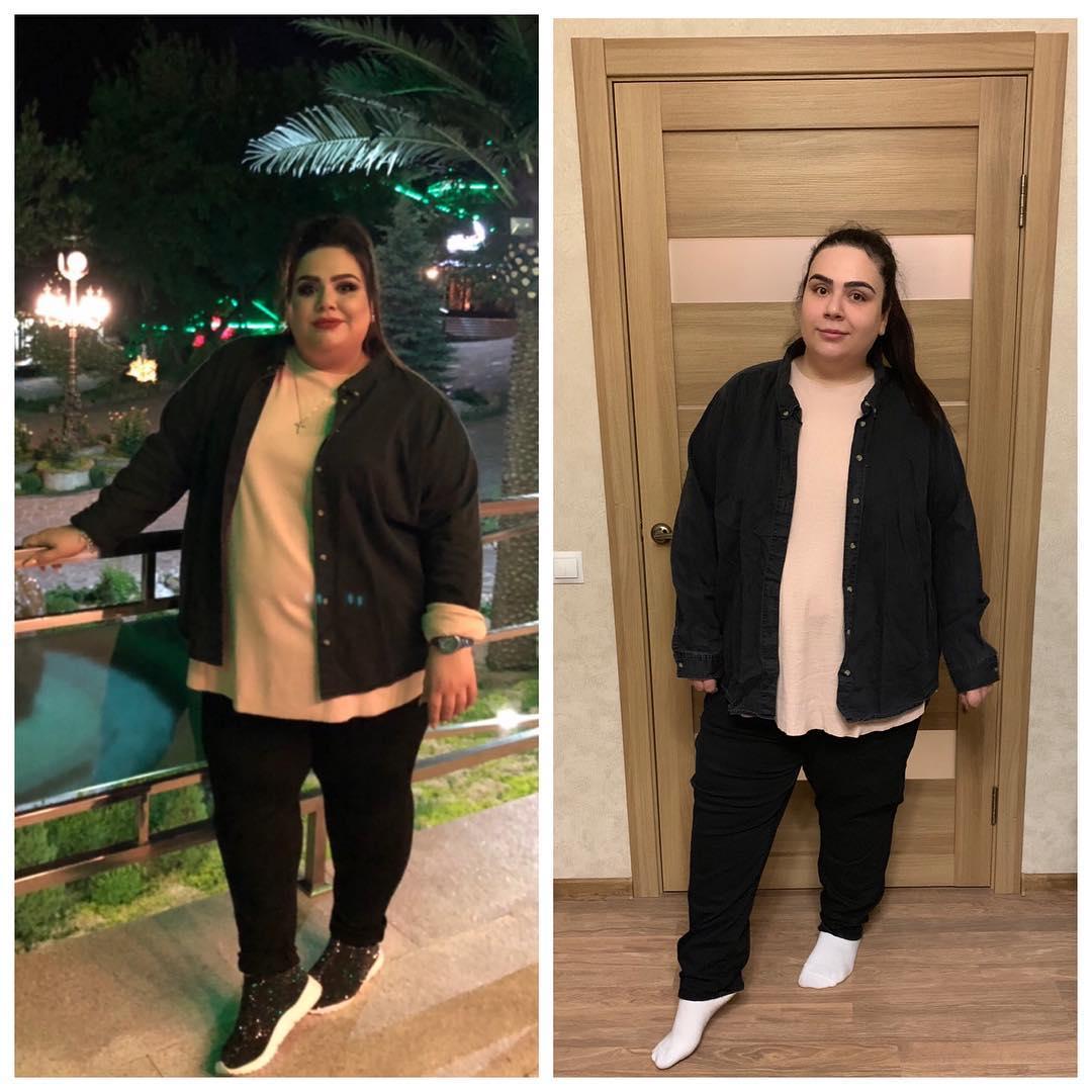 История похудения на 100 кг