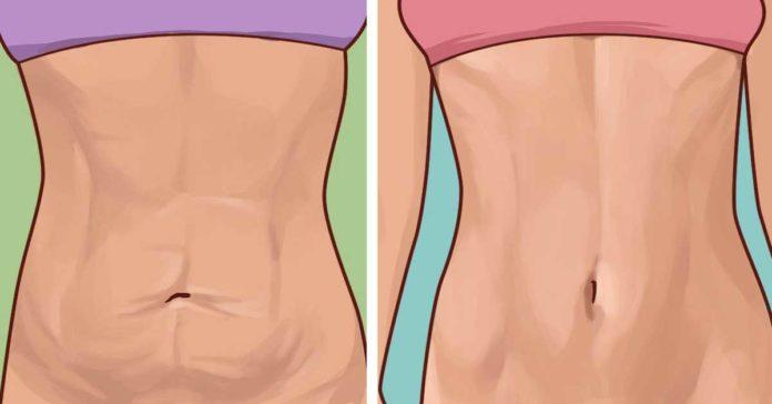 10 натуральных эффективных способов борьбы с растянутой и обвисшей кожей