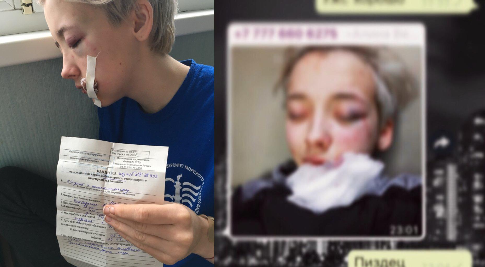 «Вы что, лесбиянки?»: в центре Петербурга семеро мужчин избили 18-летнюю девушку