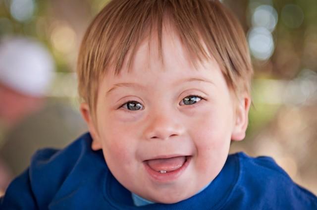 Стоит ли рожать ребенка с синдромом Дауна?
