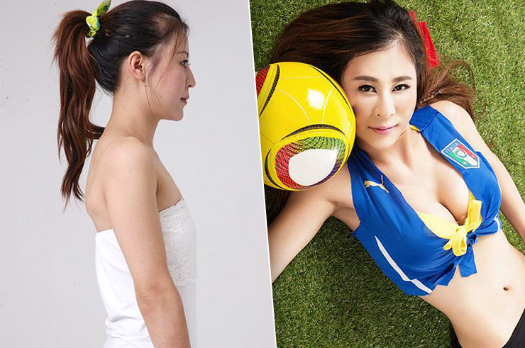 Красота по‑азиатски: какие пластические операции делают восточные девушки азия