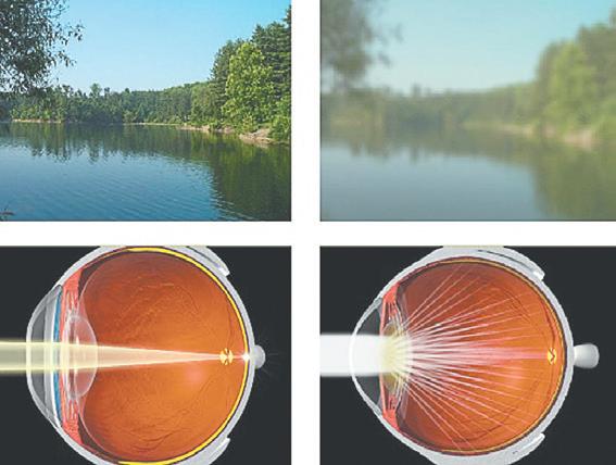 Народные средства лечения катаракты