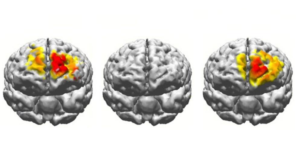 Активность мозга во время выполнения теста на рабочую память. Слева – мозг 20-летнего участника. В центре – мозг 70-летнего участника. Справа – мозг того же пожилого человека после электростимуляции.