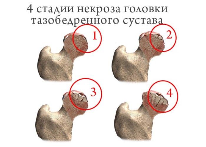 Инфаркт тазобедренного сустава