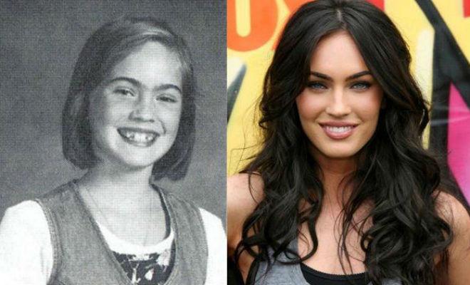 Меган Фокс и другие звезды, которых в детстве называли некрасивыми