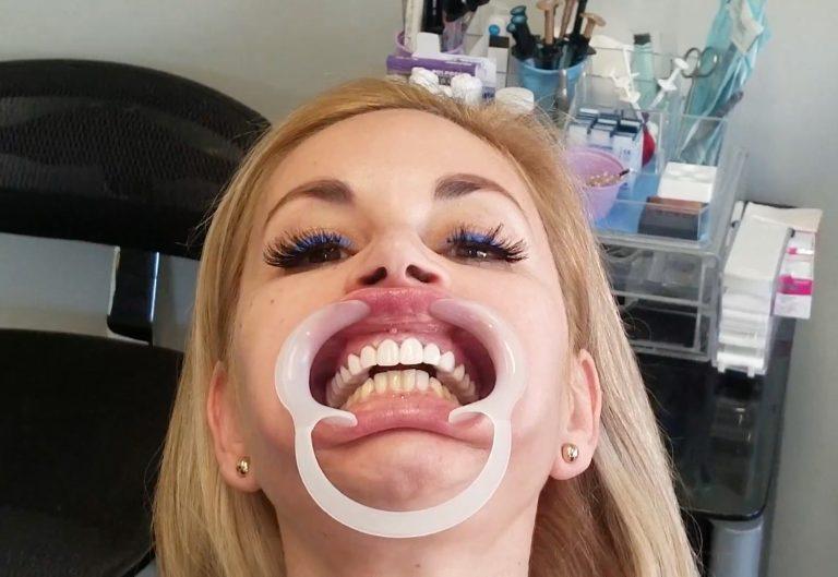 Девушка 6 лет не улыбалась, стесняясь своих зубов. Сегодня у нее голливудская улыбка и даже собственные инициалы на зубах