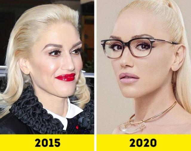 Знаменитости, которые за последние 5 лет изменились до неузнаваемости