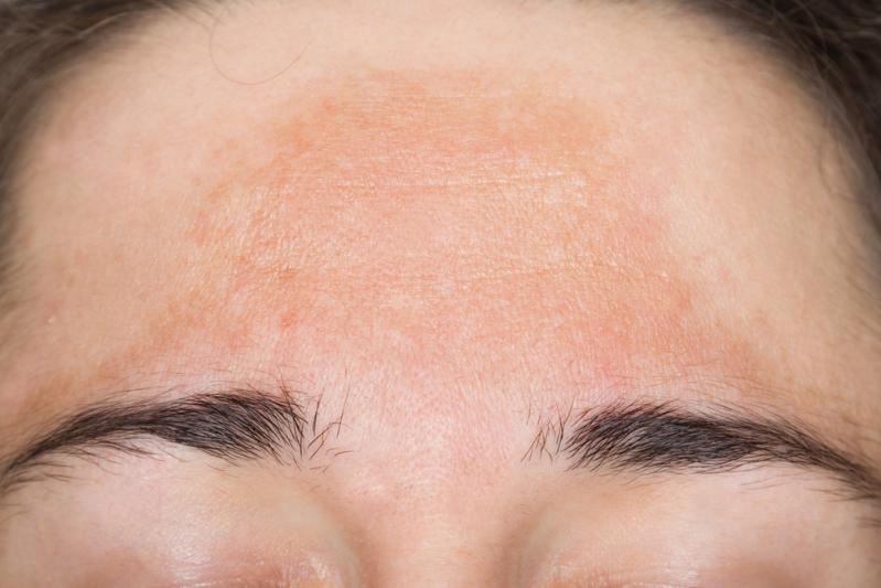 Почему появляется гиперпигментация кожи и как уменьшить её проявления