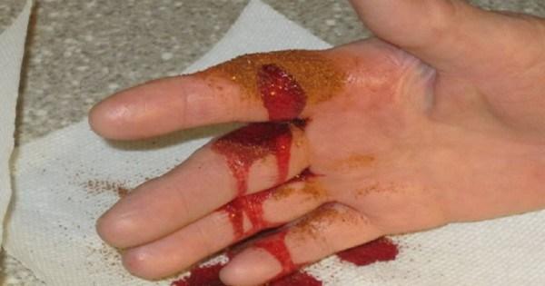 Трюк, который поможет остановить кровотечение за 10 секунд: безотказный метод.
