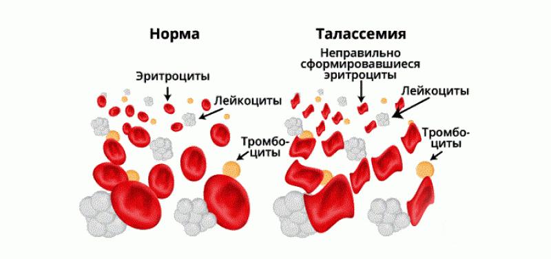 Ученые изобрели в 2020 году: тест на болезнь Альцеймера, генную терапию болезней крови, новые препараты против рака и еще много всего изобретения,исследования,медицина,наука