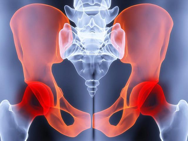 Инфаркт тазобедренного сустава симптомы