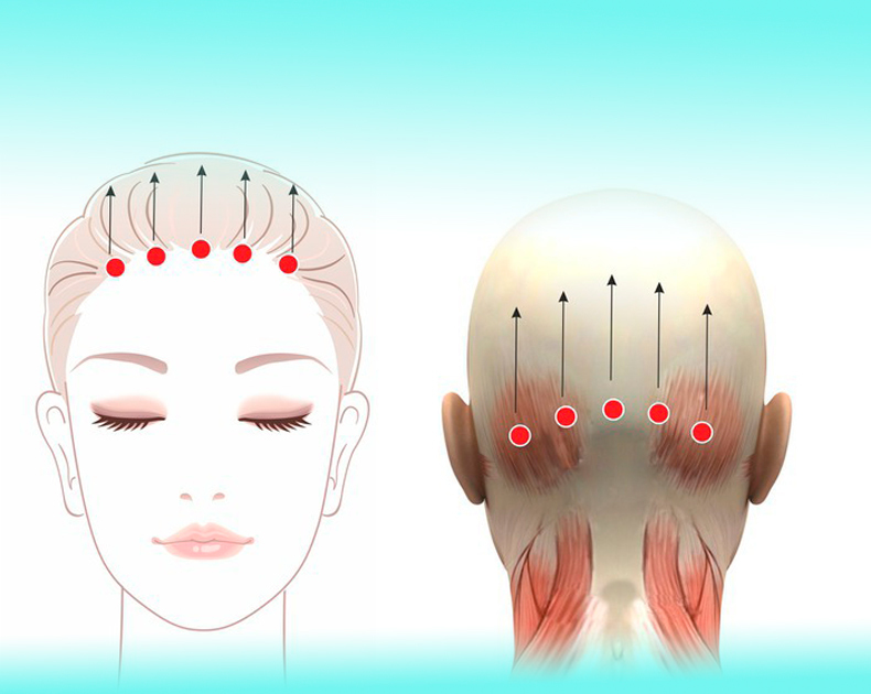 Сухожильный шлем: спасаем лицо от морщин апоневроз головы,здоровье,красота,сухожильный шлем