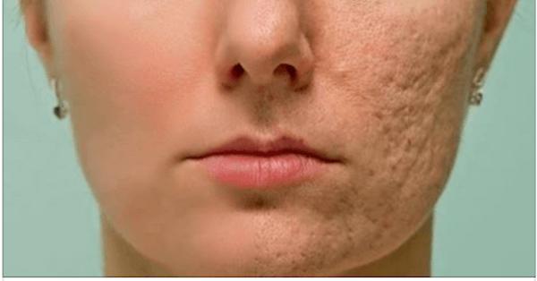 Маска устраняет пятна, угри и морщины на вашем лице