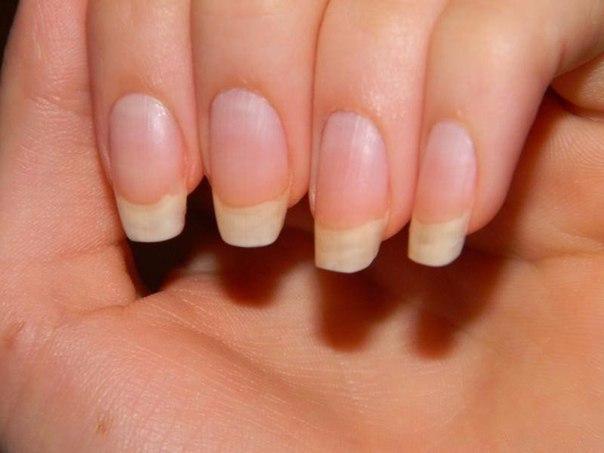 Чтобы ногти всегда выглядели ухоженными и были белыми, длинными и крепкими...