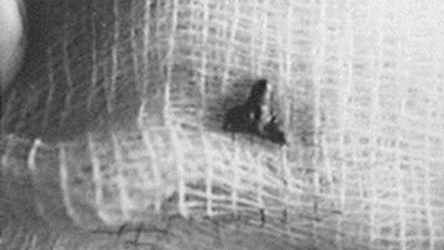Доктор Роджер Лир и его исследование случаев внедрения в людей инопланетных имплантатов