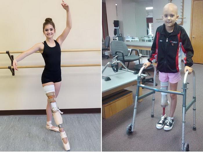 Балерина без ноги: девушка д…