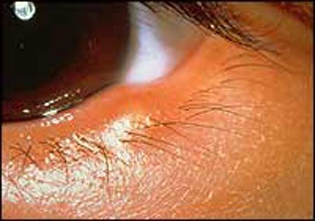 Ячмень глаза. Народные метод…
