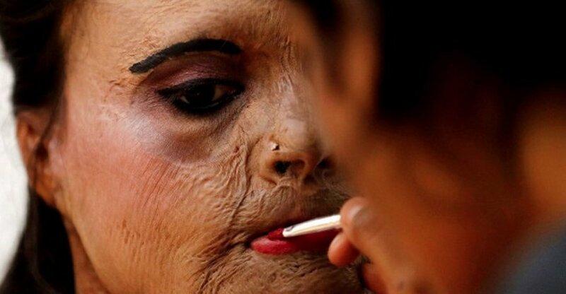 Женщина пострадала от кислотной атаки, а теперь ей наносят макияж перед показом мод к Международному женскому дню в Мумбаи добро, доброта, животные, люди, поступок, спасение, человечность