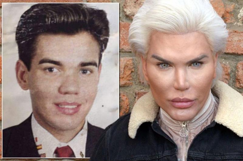 Наконец-то, Родриго Алвес – кукла Кен, заявил, что доволен своим видом и прекращает операции