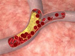 Содержащая холестерин животн…