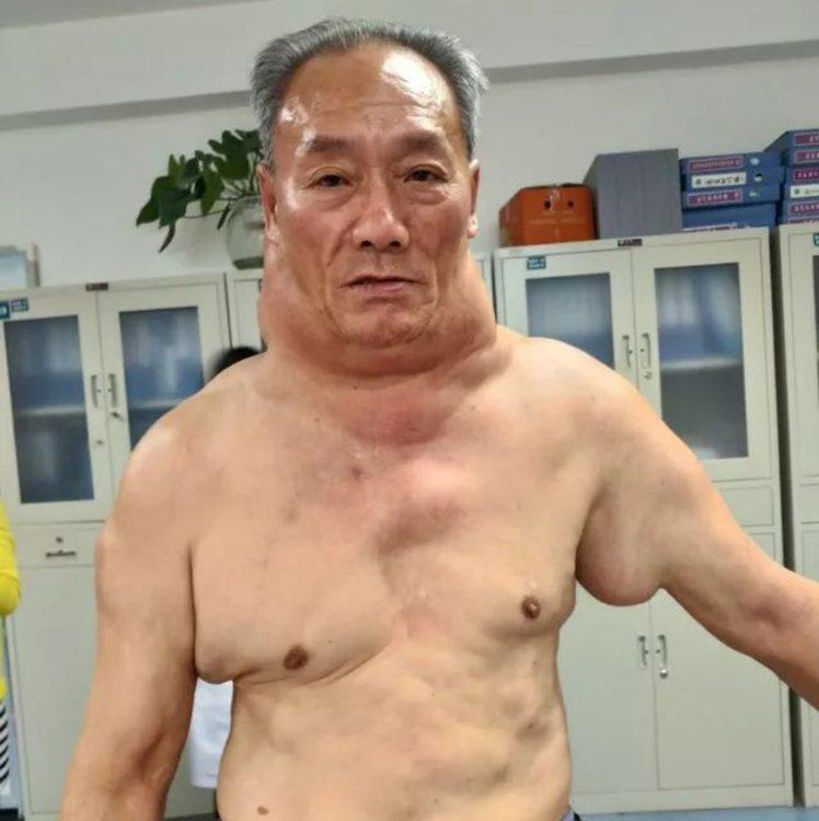 После 30 лет беспечных возлияний рисовой настойки китаец вдруг превратился в монстра