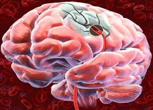 Инсульт: симптомы, которые говорят о его приближении. Можно ли защититься от этой беды?