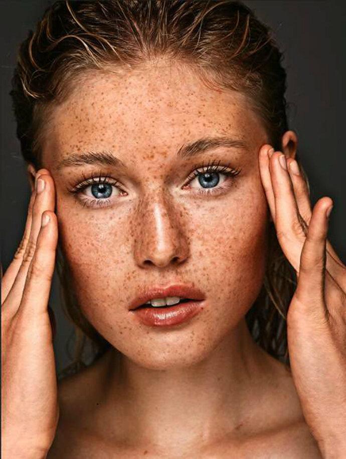 Как убрать с лица пигментные пятна внешность,косметика,красота,макияж,мода и красота,модные советы,стиль,стиль жизни