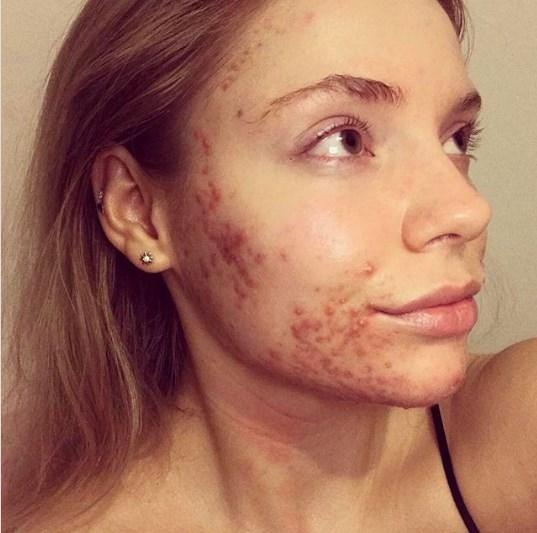Участница конкурса красоты страдала акне, но отказ от сахара полностью преобразил эту девушку