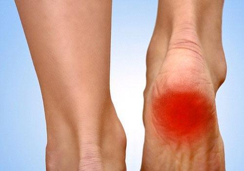 Боль в пятке - симптомы и лечение пяточной шпоры