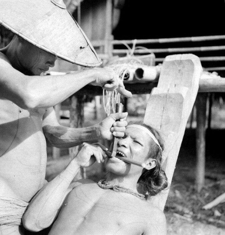 Заточка зубов у индонезийских племен, 1938 год. история, ретро, фото