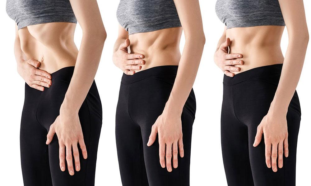 Вакуумный способ похудения