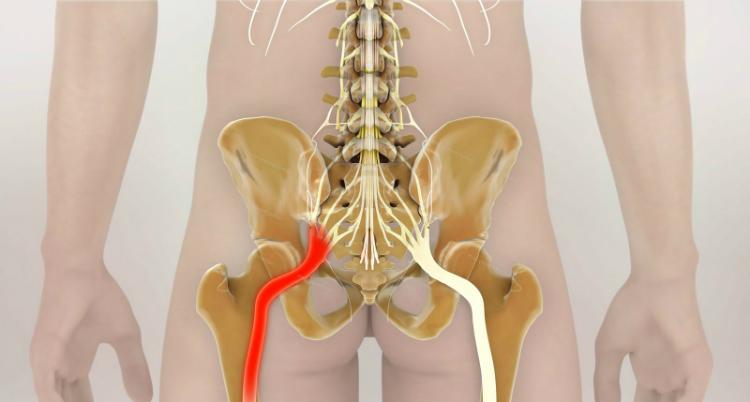 Как разблокировать седалищный нерв: 2 простых способа снять боль.