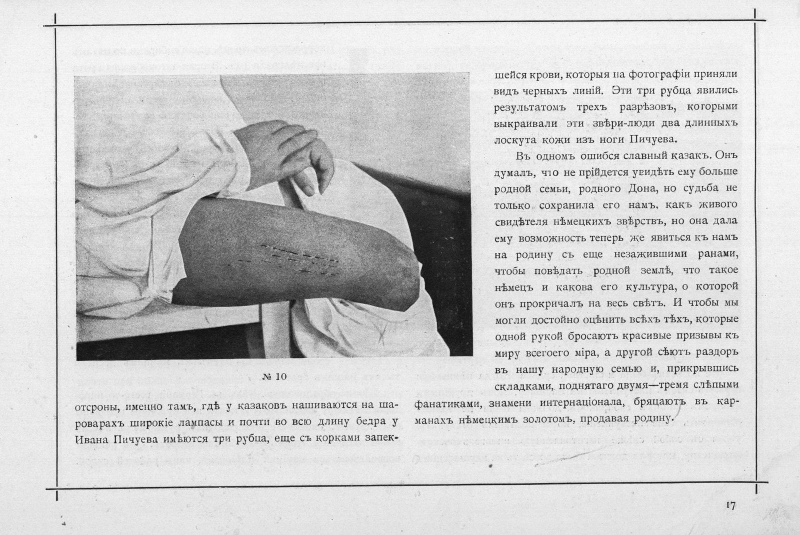 Исторические фотографии 1917го из жизни русских пленных в Германии и Австрии исторические фото