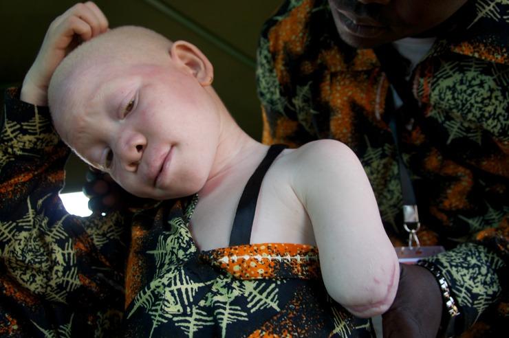 Интересные факты об альбиносах альбиносы