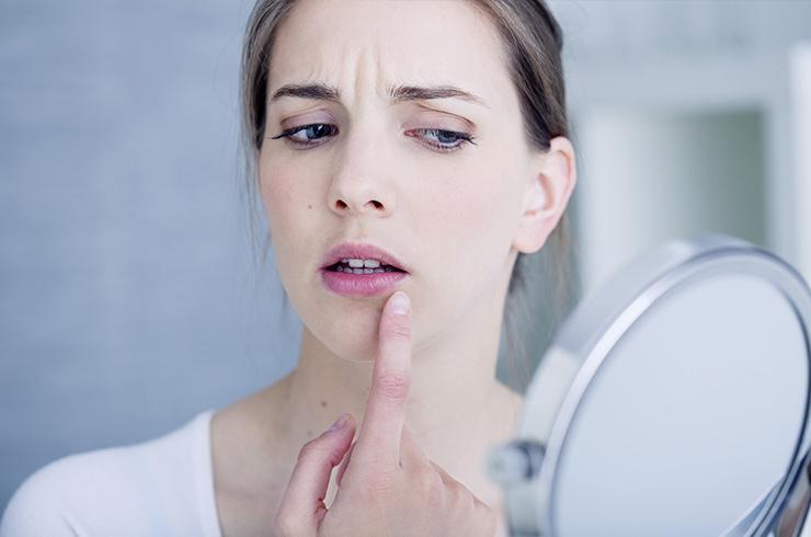Откуда берётся простуда на губах и что с ней делать
