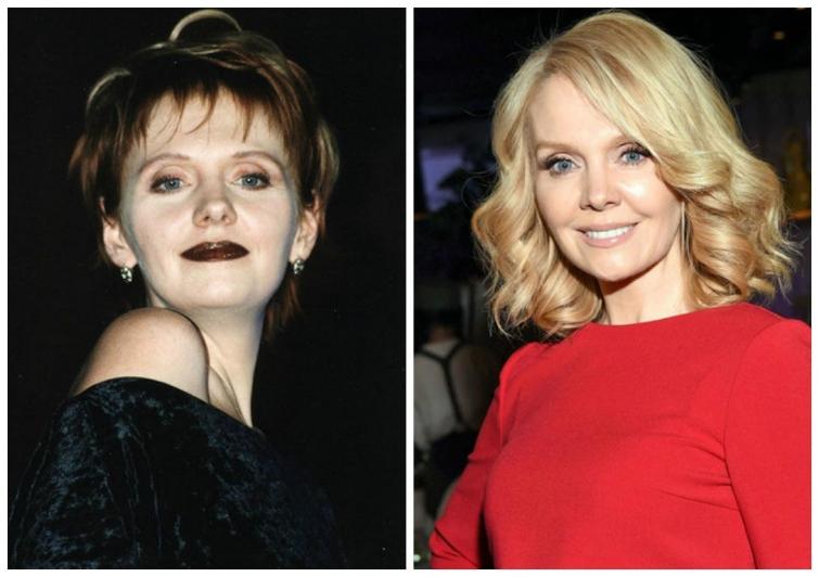 полина гагарина фото до и после пластики