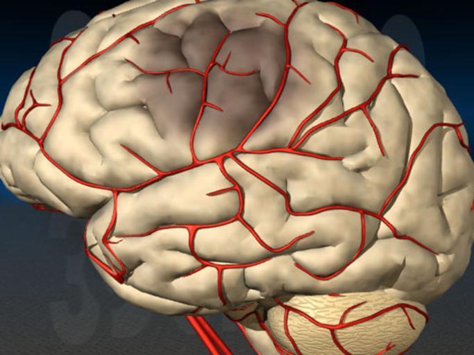 Сужение сосудов головного мозга лечение