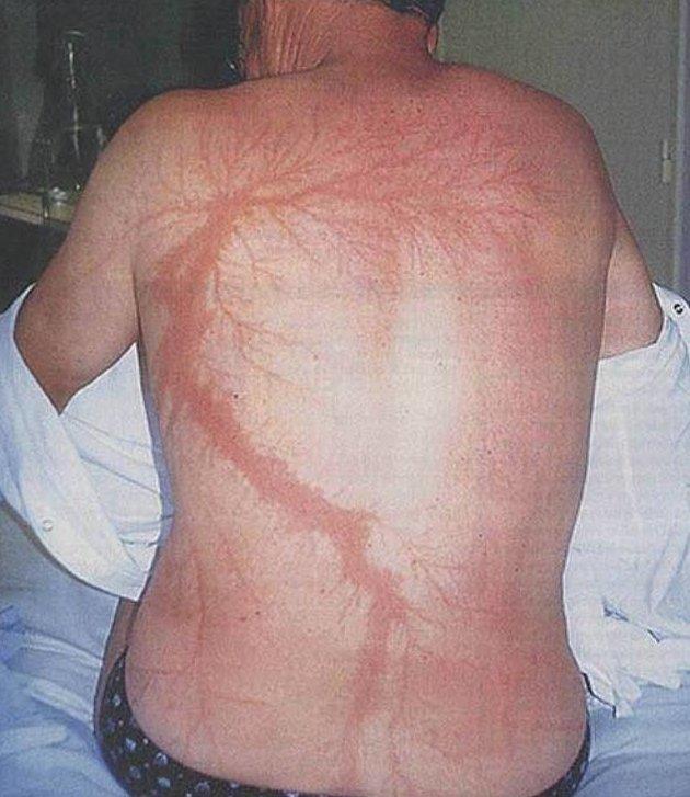 """1. Вот такие """"татуировки"""" на теле человека оставляет природа естественно-научно, интересно, молния, природа, стихия, удар молнии"""