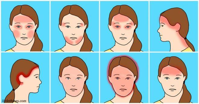 Есть 10 видов головной боли.…