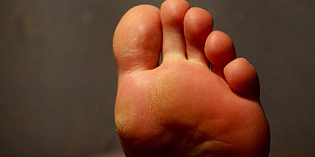Отчего болят стопы ног. Как это влияет на здоровье болезни,здоровье,медицина,ноги,профилактика