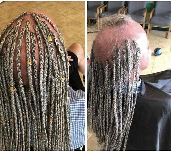 Что делать с оставшимися волосинами забавное, лысина, облысение, подборка, прикол, причёски, юмор