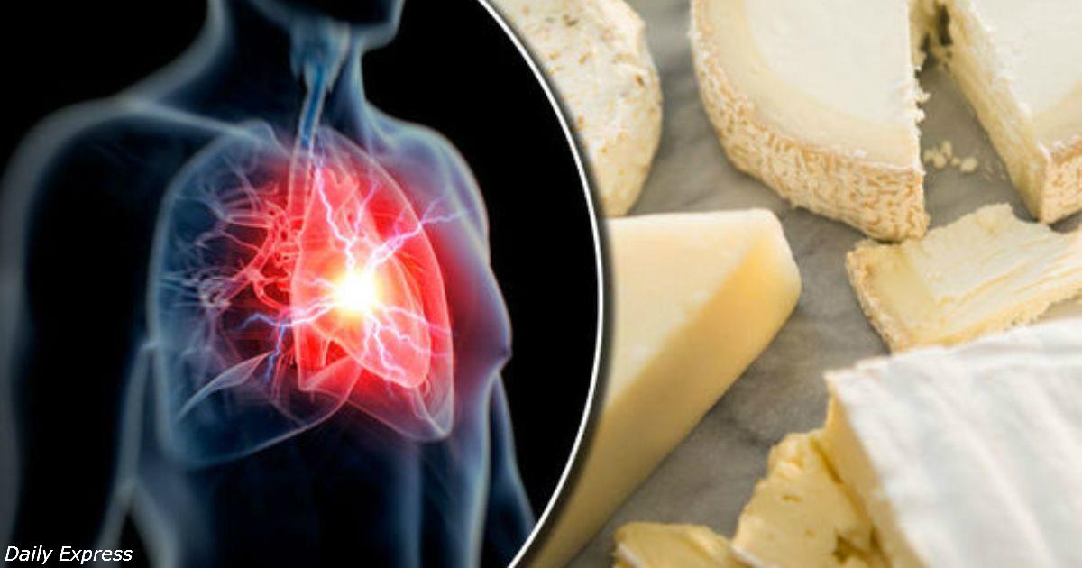 Чтобы вас никогда не сразил инфаркт или инсульт, нужно есть больше сыра