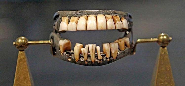 Зубы Ватерлоо: как циничные стоматологи превратили трупы солдат в бизнес