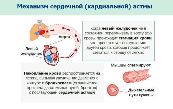 Сердечная астма: нет боли, но есть одышка легких, положении, сердечной, через, появляется, может, желудочка, цвета, возникновения, приступа, левого, розового, сердца, уменьшается, положение, крови, астмы, человека, врача, заболевания